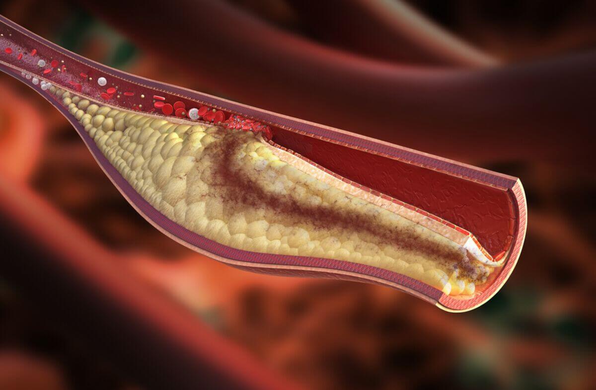 Названа опасность высокого холестерина при больном сердце