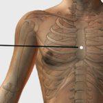 Нажмите на эту точку на теле, чтобы избавиться от стресса и тревожности